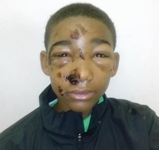Mother Accuses PA Cops of Beating Her Teen Son After Arrest