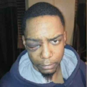 Charges To Be Dropped Against Hasidic Jew Indicted For Gang Assault On Black Man