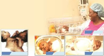 Zimbabwe In Medical Breakthrough: Conjoined Twins Separated
