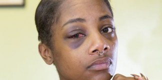 No Felony Charges For SPD Cop's Bone-Breaking Punch Of Handcuffed Woman