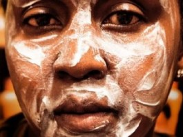 Skin Bleaching In Africa: Black Beauty
