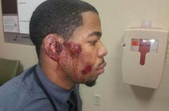 Police In St. Louis County Admit They Beat Up The Wrong Young Black Man