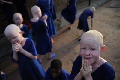 Cameroon: Albinos Struggle For Love And Acceptance