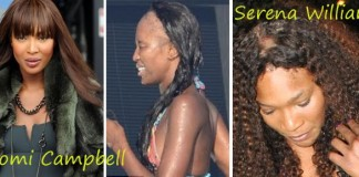 Black Women Are Going Bald -- But What's The Root Cause?