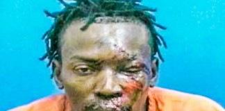 Florida Sheriff Claims There Is 'Absolutely No Evidence' Man In Mug Shot Was Beaten