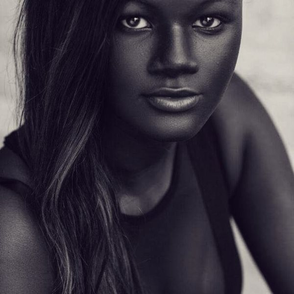 This Girl Was Bullied For Her Skin Color. Now She's A Badass Model