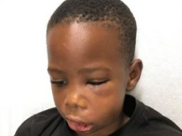 Baltimore Tutor Charged With Child Abuse After 7yo iS Hospitalized With Head Injuries