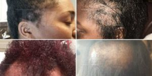 L'Oréal Sued By Black Women Who Say The Company's Hair Relaxers Left Them Bald