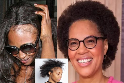 The Biggest Breakthrough In Dermatology: S. African Scientist Discovers Cause Of Alopecia In Black Women