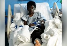 12-Year Old Shot In The Knee By SWAT Even Though His Hands Were Up
